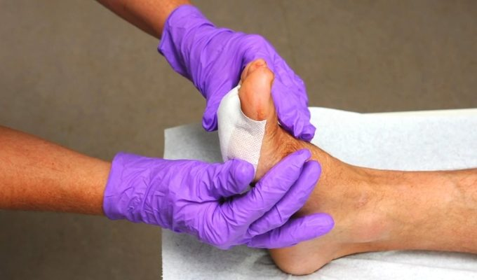 A blister being bandaged