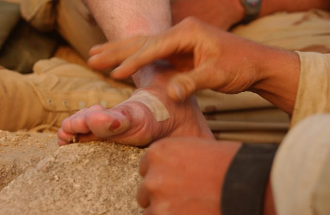 A blister on the foot