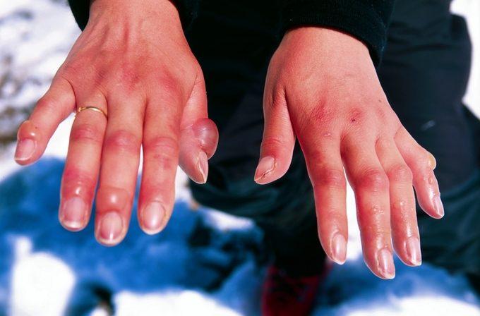 A pair of frostbitten hands