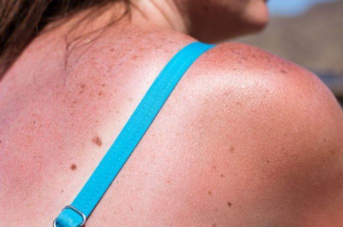sunburned woman on the sun