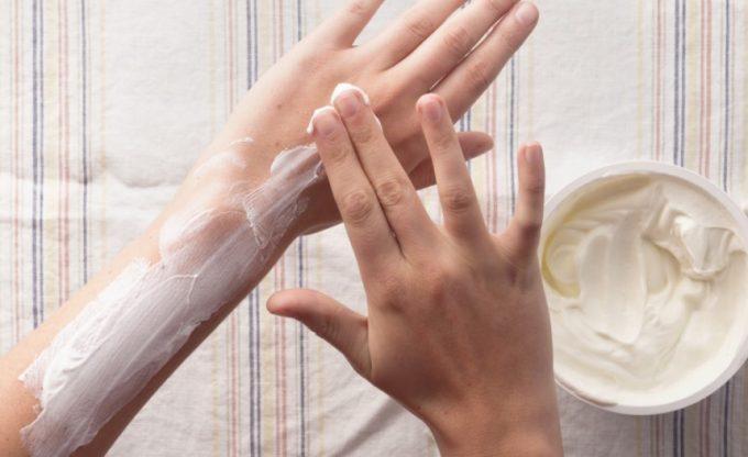 yoghurt for sunburn